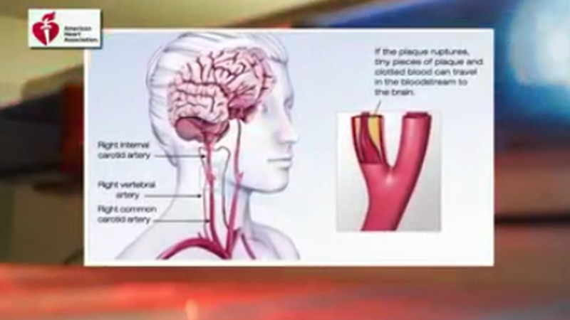 The Investigators: Many Mississippians live far from crucial stroke care