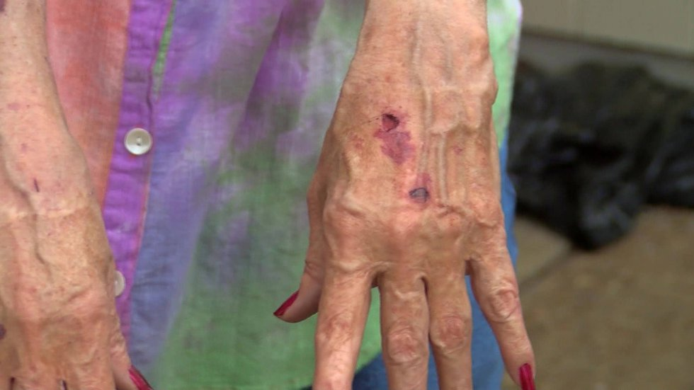 Whitten's injuries (Source: WMC Action News 5)