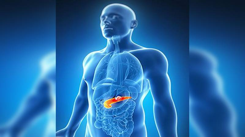 Pancreatic Cancer is considered one of the deadliest cancers. (Source: WMC)