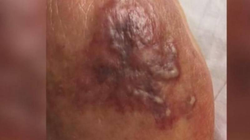 Flesh-eating bacteria in the Gulf